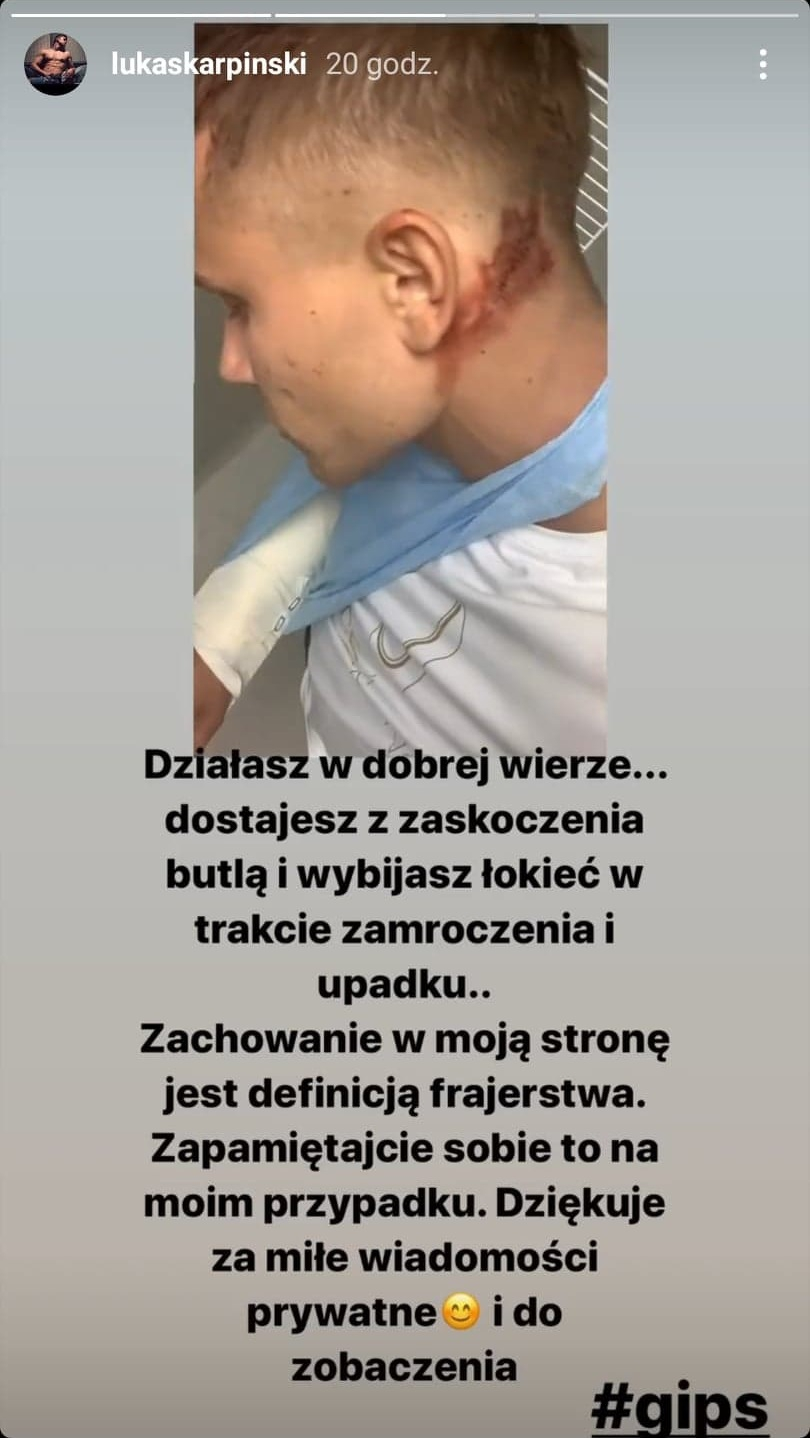 """""""Hotel Paradise 2"""". Łukasz Karpiński ofiarą brutalnego ataku! Uczestnik został pobity [FOTO]"""