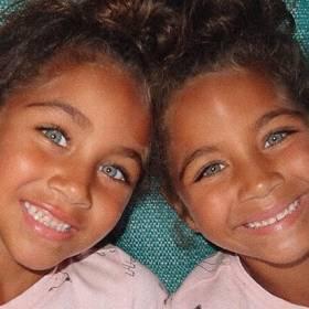 Okrzyknięto je najpiękniejszymi bliźniaczkami na świecie! Isabella i Mia mają już ponad milion fanów
