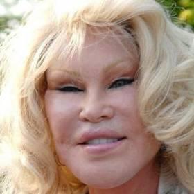 Jocelyn Wildenstein twierdzi, że nigdy nie miała operacji plastycznych