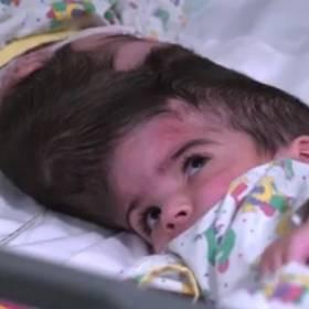 Bliźniaczki syjamskie rozdzielone po trwającej 50 godzin operacji